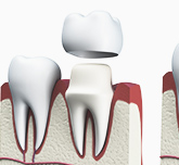 A 3D digital model of how dental crowns are applied